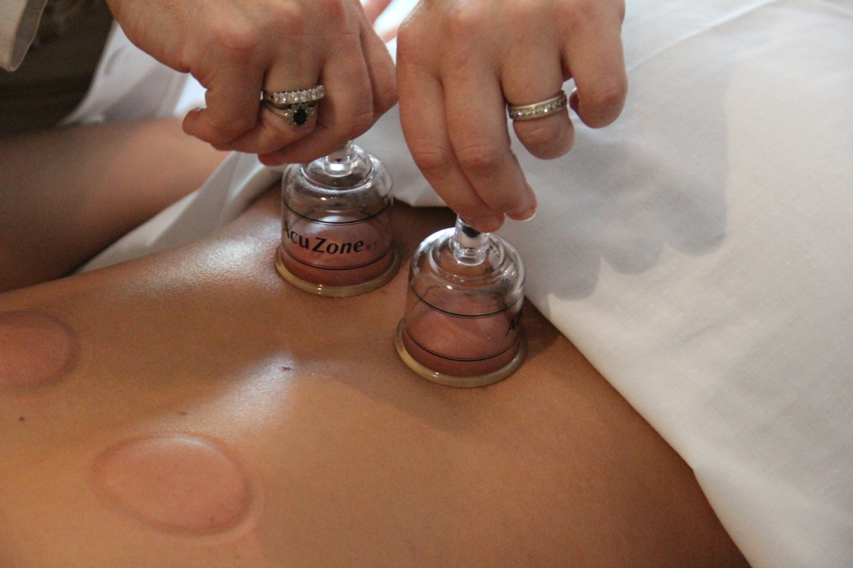 'Cupping' practitioners optimistic after Rio Games, but regs lag behind